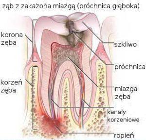 Głęboka próchnica z zęba